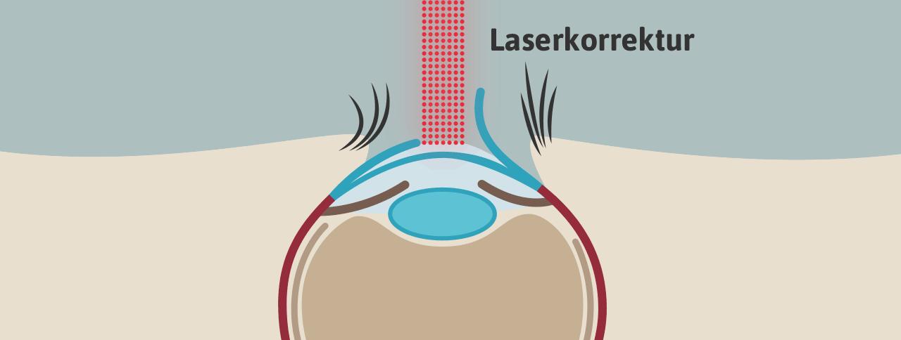 LASIK OP 03: LASIK Korrektur des Auges