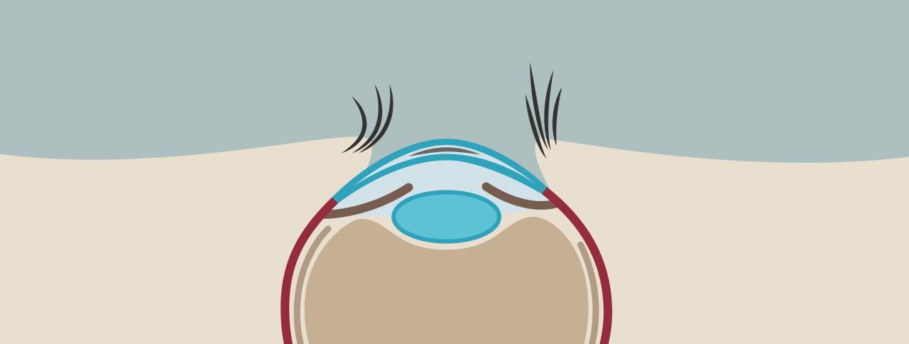 LASIK OP 04: LASIK Behandlung abgeschlossen