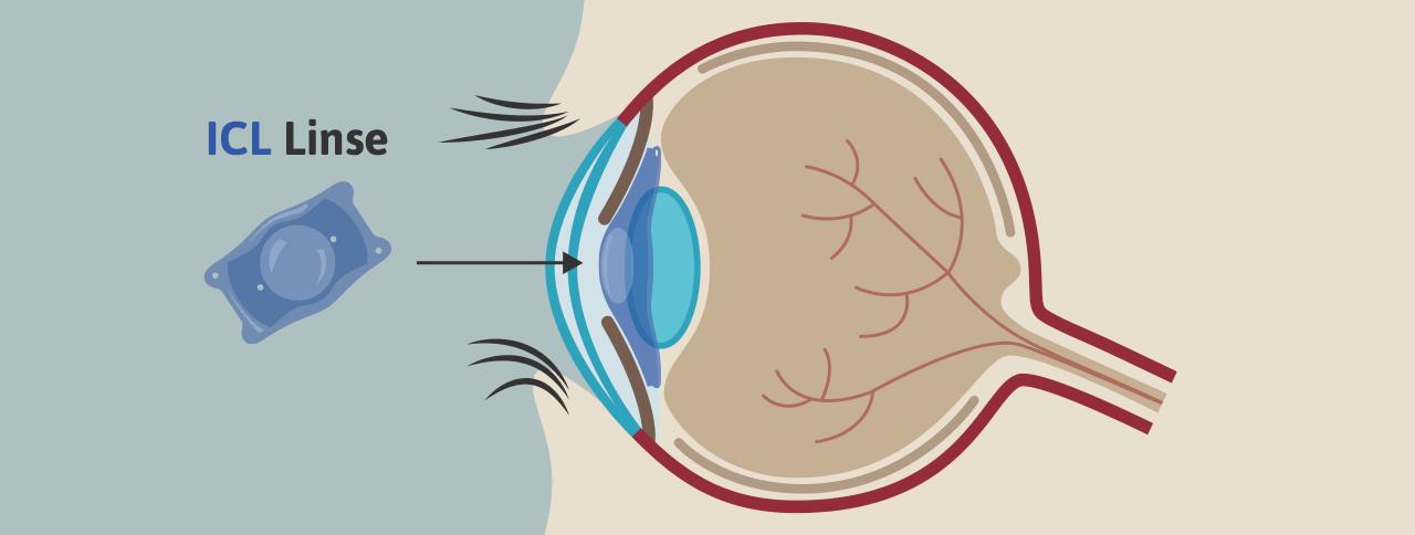 ICL Linse für Augenoperationen